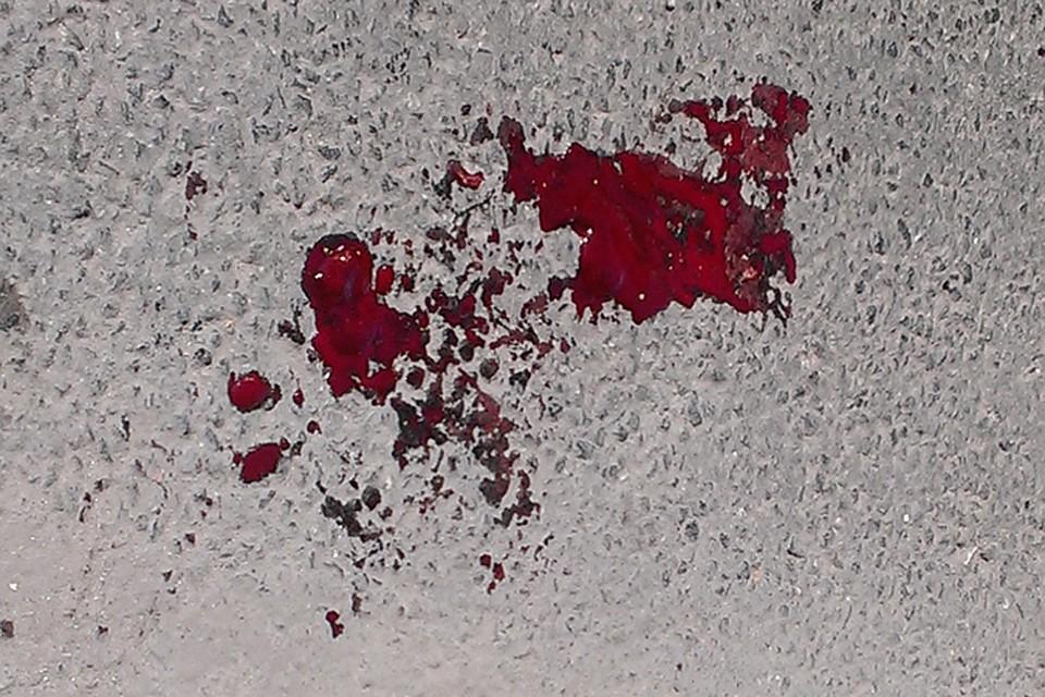 Нажителя Тюмени сножом напала знакомая изсоцсети