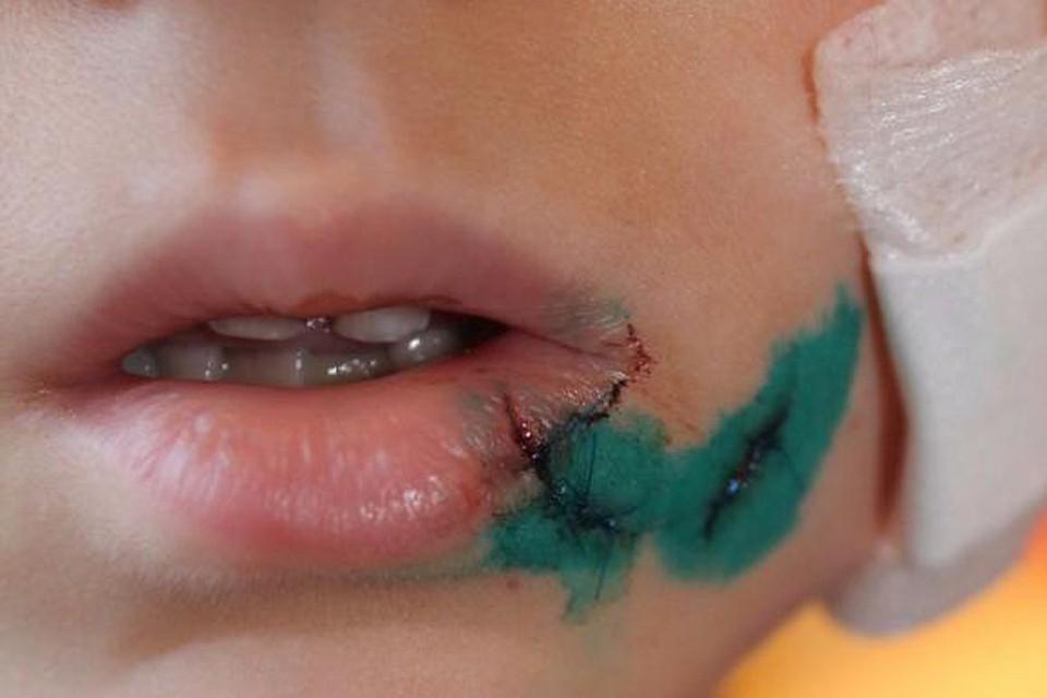 Ребенок вбарнаульском детсаду получил рваную рану лица