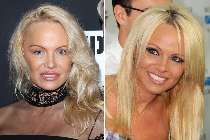 Справа: такой мы привыкли видеть Памелу Андерсон. Слева: а так она выглядит теперь.