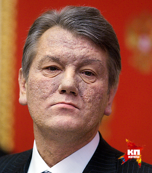 У него даже апельсиновая корка на лице Фото: РИА Новости