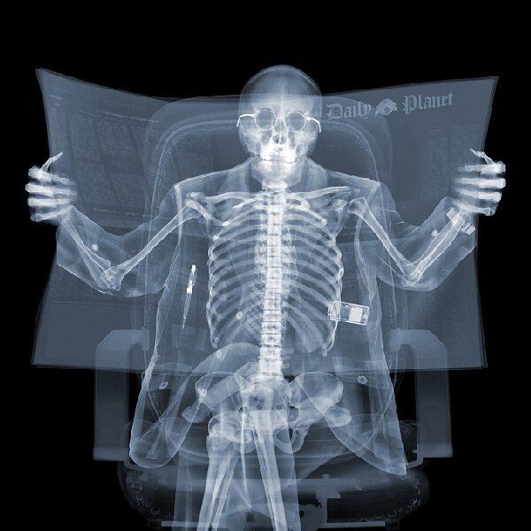 Выставка фотографа Ника Визи «X-Ray Men»