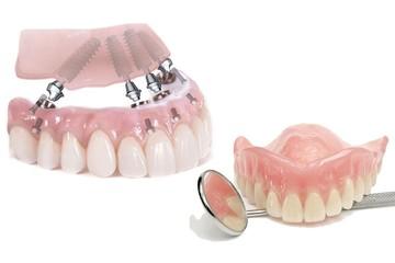 Съемные или протезы нового поколения: что выбрать, если нет всех зубов?