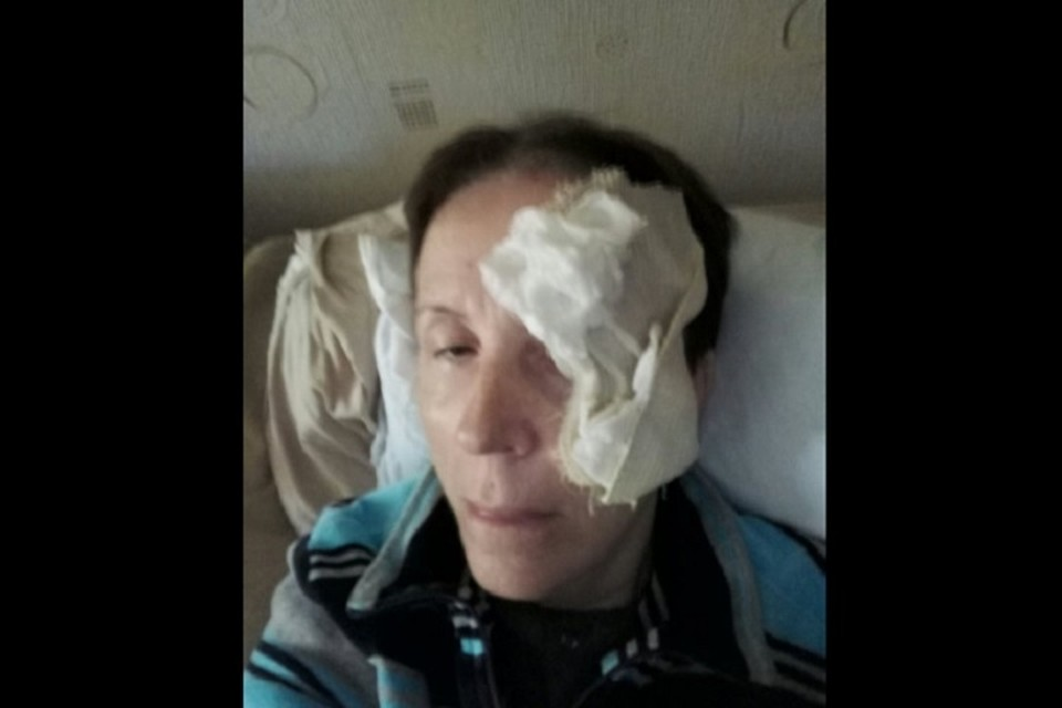 Вера Панасенко через несколько часов после ЧП (Фото: личный архив Веры Панасенко).