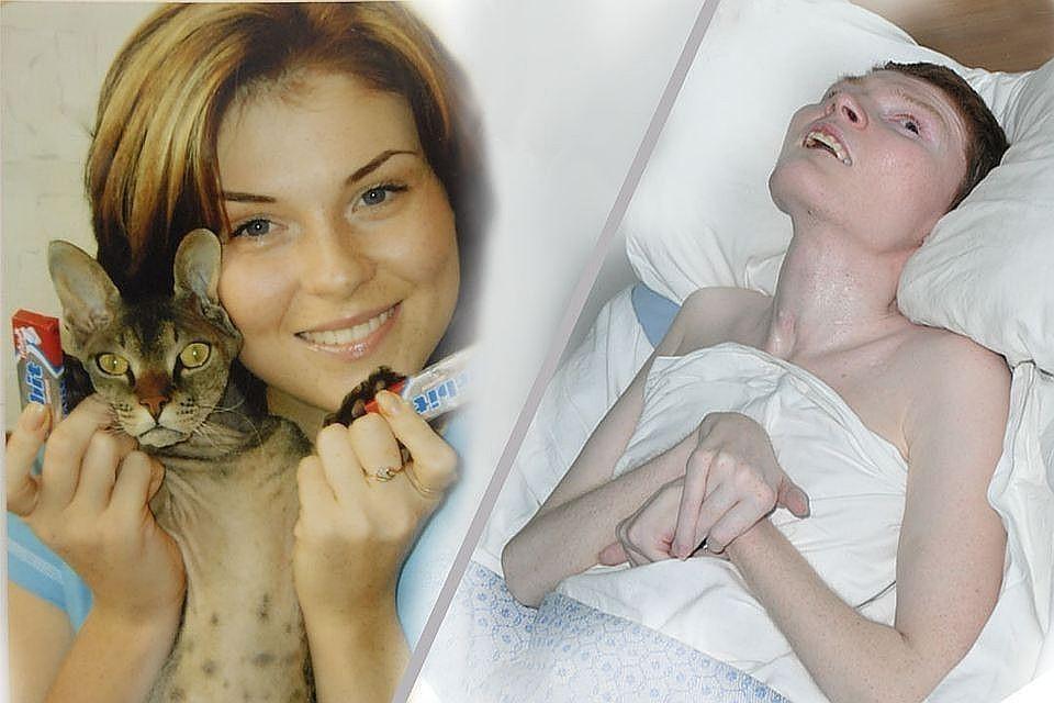 Ирина Пекарская - одна из самых тяжелых пострадавших в ночном клубе «Хромая лошадь»