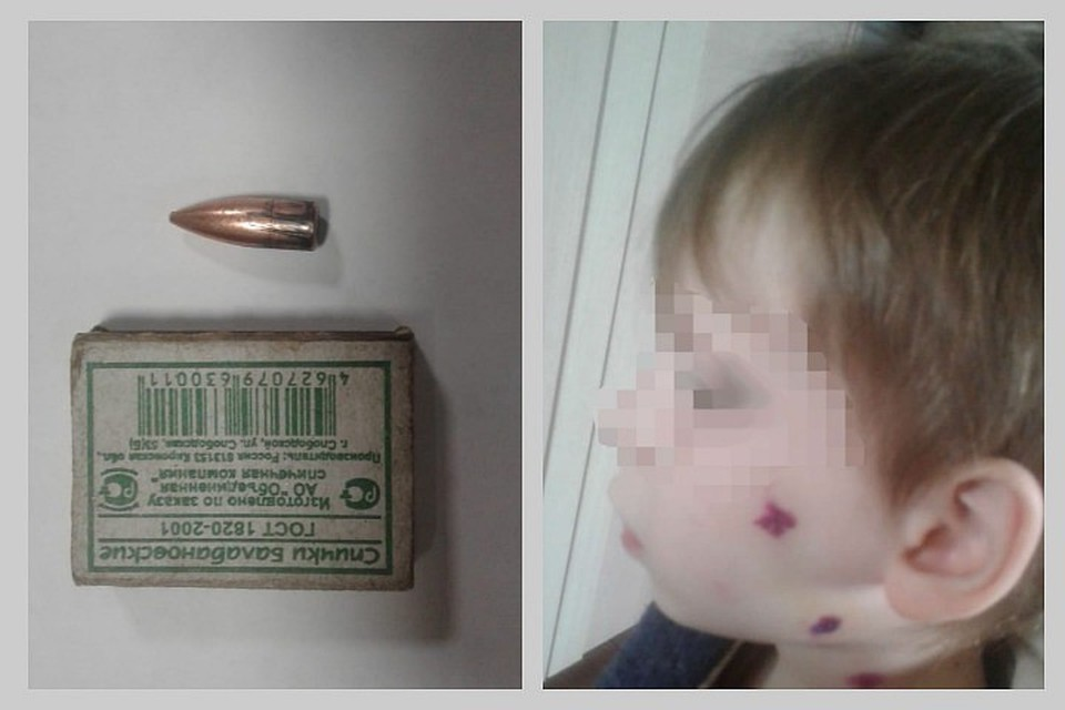 Стрелка, ранившего из оружия 6-летнего ребенка в новогоднюю ночь, ищет полиция. Фото: предоставлено семьей ребенка.