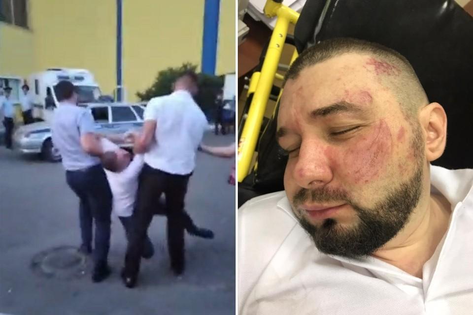 Министр от потрясения попытался убежать, но потом рухнул от боли