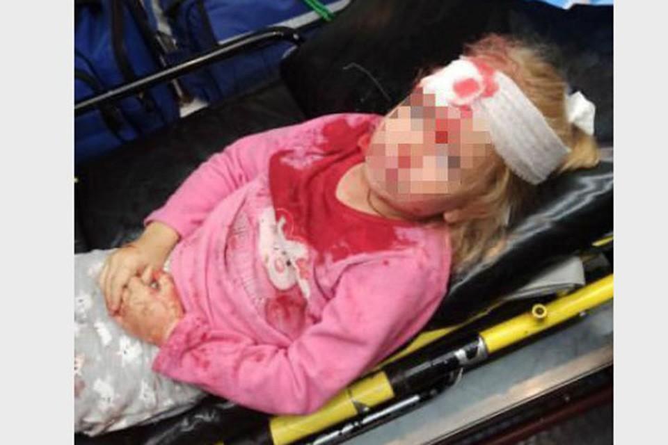 Во время одной из акций протеста в Гродно пострадал пятилетний ребенок. Фото: tut.by