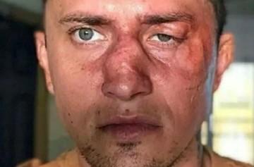 Состояние Павла Прилучного: кто на самом деле изувечил звезду сериала «Мажор»