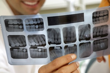 Ушли на ковидный фронт: стоматологиям грозит массовое закрытие из-за нехватки рентгенологов