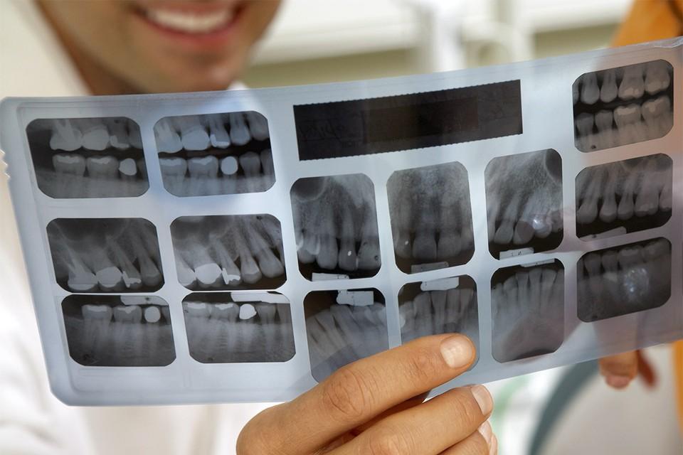Многие рентгенологи в регионах нынче сутками работают со снимками легких, теперь им не до зубов.