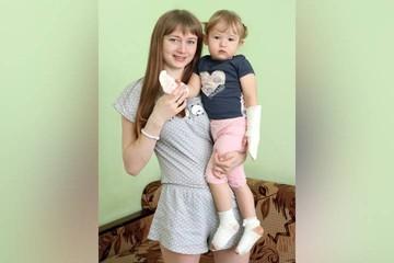 «Передалось по наследству»: в Иркутске 2-летней девочке удалили шестые пальцы на ногах