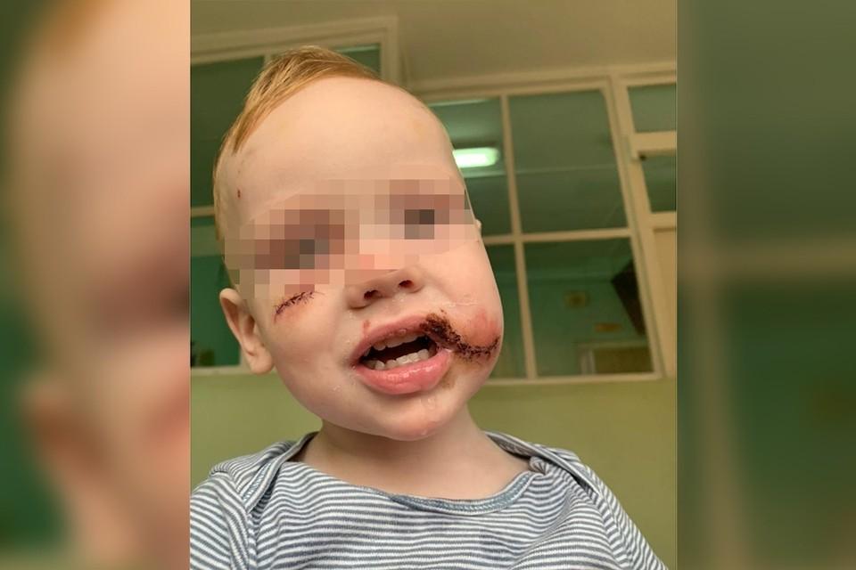 В Красноярске бездомный пес укусил за лицо ребенка. Фото мамы пострадавшего мальчика