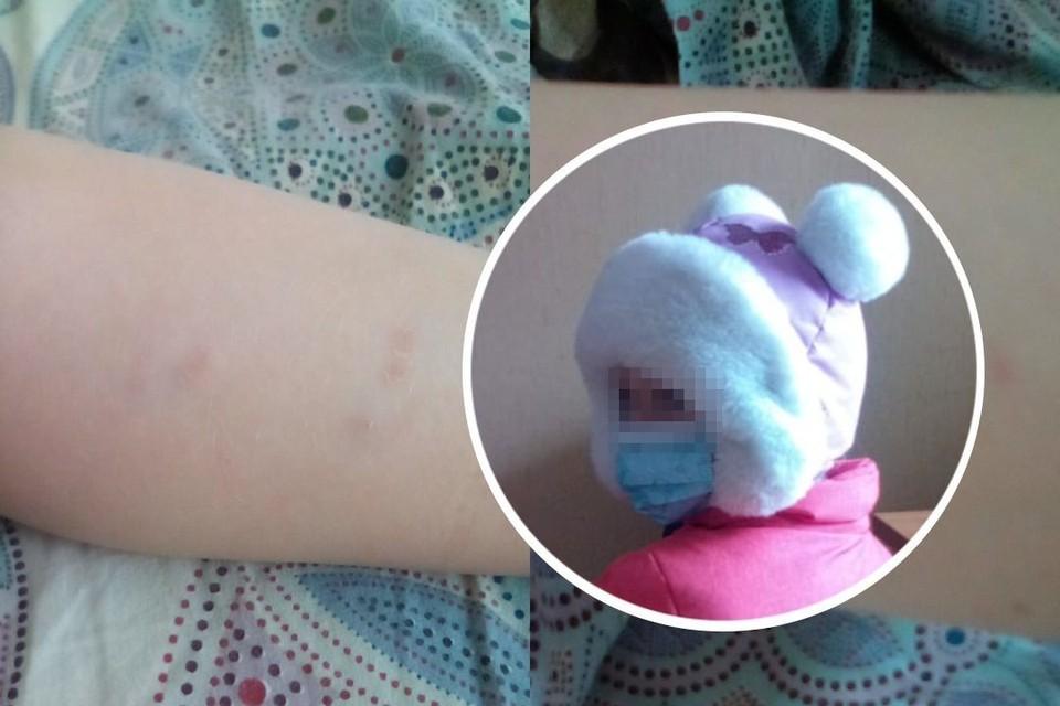 В Новосибирске бродячая собака напала на 8-летнюю девочку. Фото: личный архив