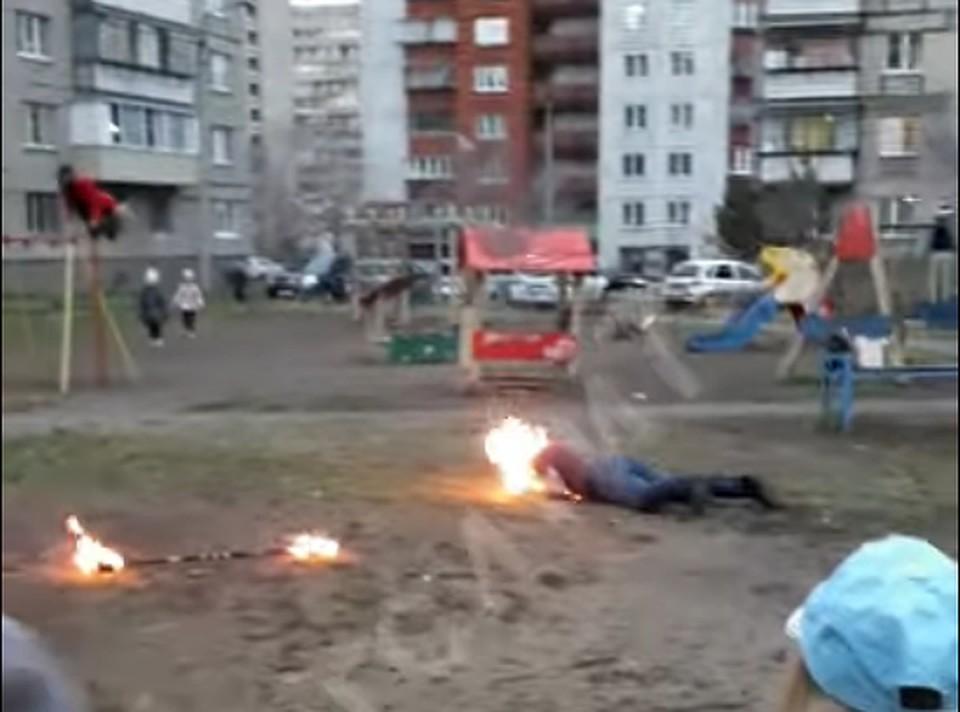 Мужчина был госпитализирован с ожогами. Фото: кадр из видео
