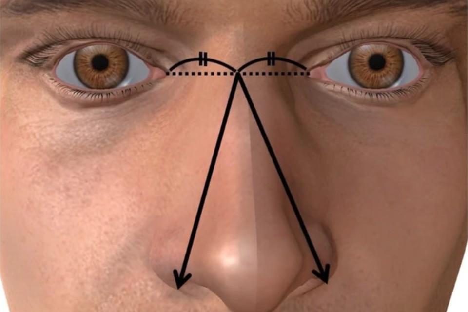 Размер носа определялся как большое расстояние между средней точкой левого и правого медиальных глазных углов и внешней стороной левого или правого крыла носа (указано стрелкой). Фото: bacandrology.biomedcentral.com