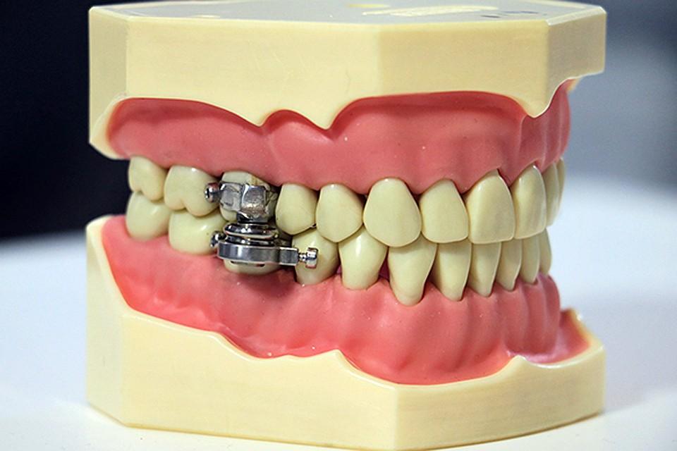 По сути, на зубы верхней и нижней челюсти болтами привинчивают по два сильных магнита. Процедуру проводит врач – стоматолог
