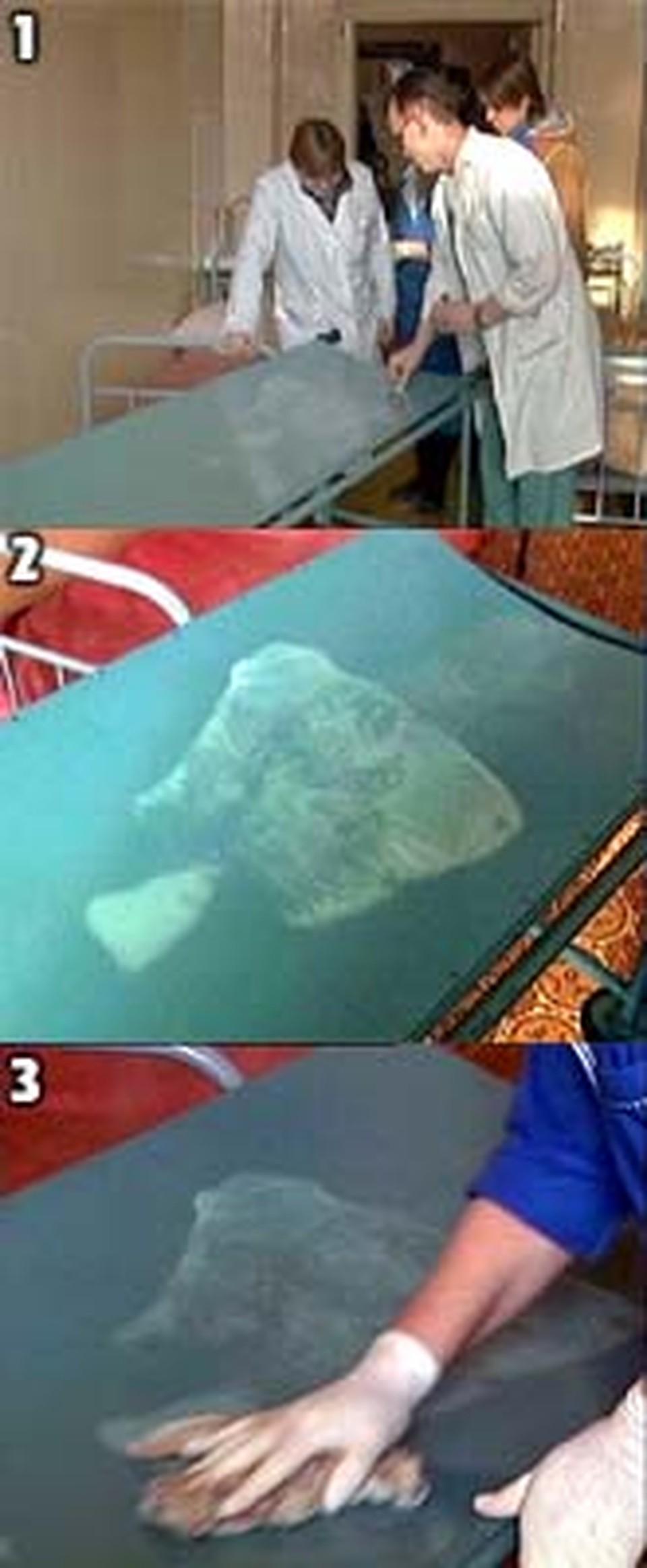 1. На таинственный отпечаток мертвого тела сбегались посмотреть со всей больницы.<br>2. Белое изображение на носилках, негатив, мы перевели в позитив для более детального рассмотрения.<br>3. Белый отпечаток «не брала» хлорка.