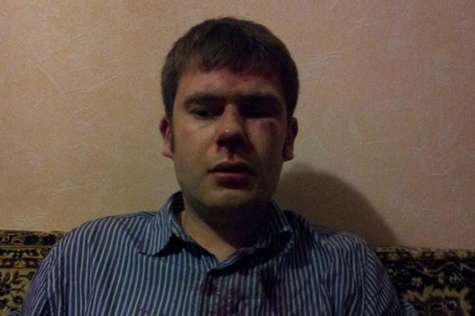 Алексей Паньшин после нападения