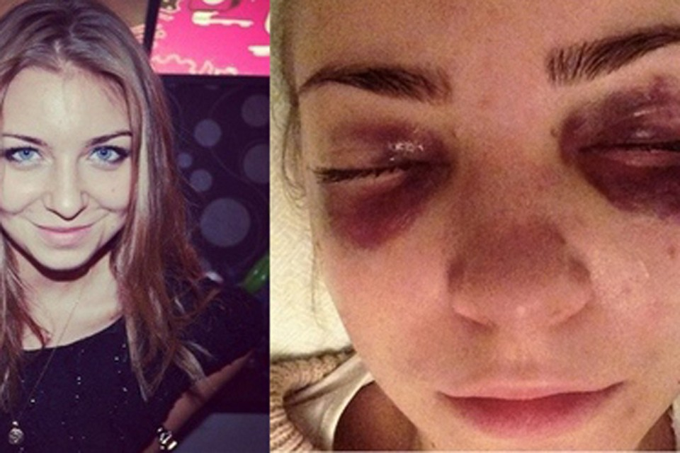 Избитая девушка выложила в сеть свои фото с синяками.