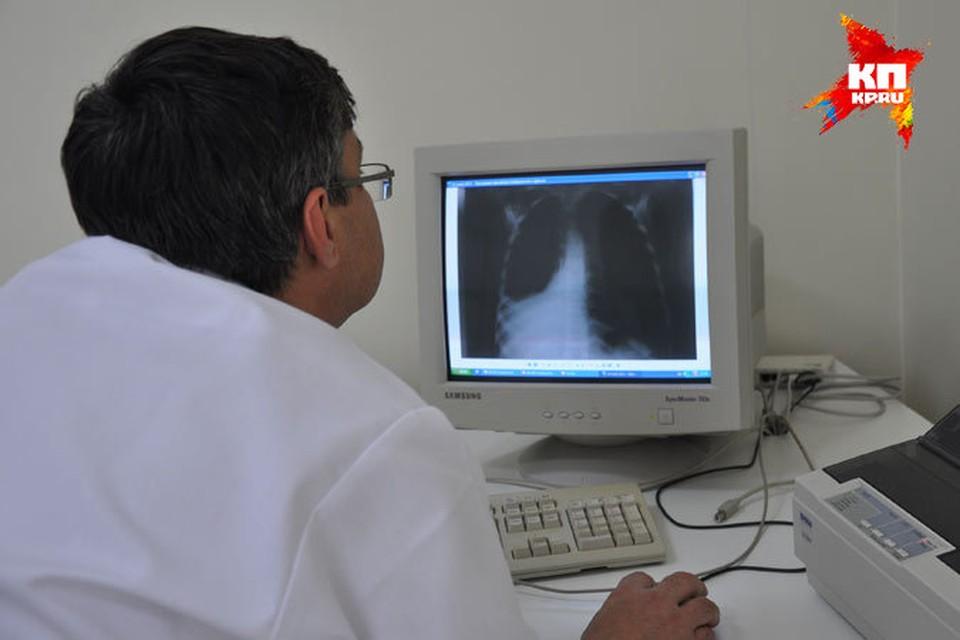 Врач отделения эндоскопии Виктор Петрович Рашков изучает рентгеновский снимок