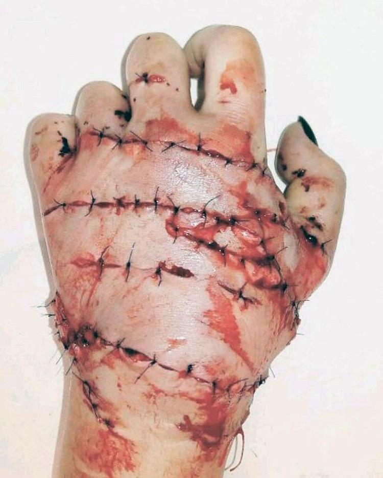 Левая кисть Маргариты после сложной многочасовой операции.