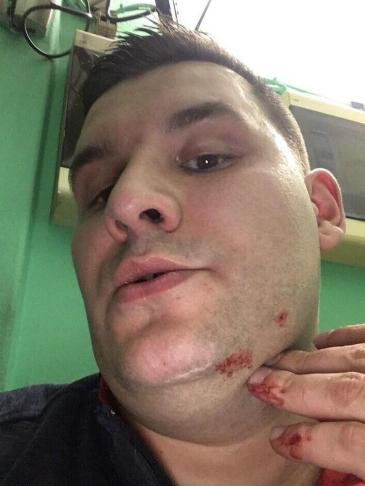 Александр Виноградов получил несколько ушибов и ссадин.