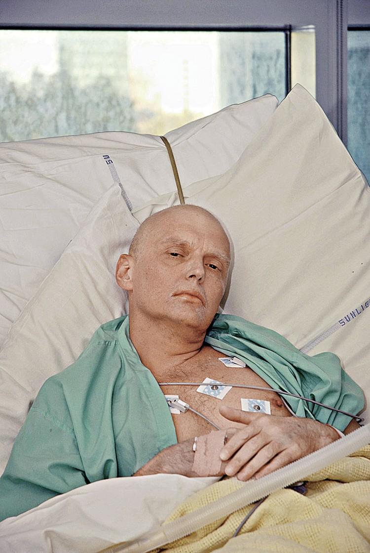 Фотографию умирающего Литвиненко напечатали все газеты мира. Фото: FA Bobo/PIXSELL/PA Images/ТАСС