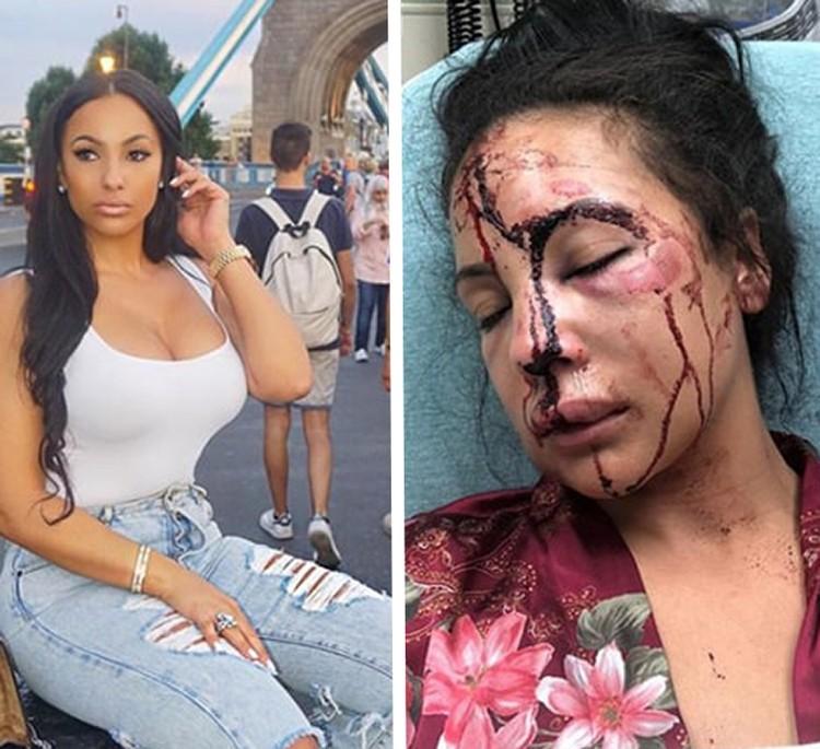Снимок избитой Делисии быстро стал вирусным и разошёлся по Сети