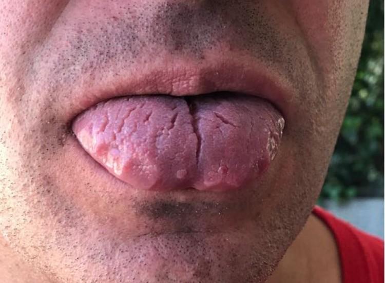 Разочарованный мужчина считает, что работу стоматолог выполнил неправильно, потому и начались его беды.
