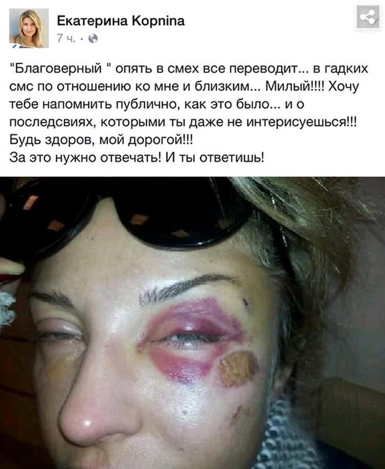 Екатерина Архарова оказалась в больнице с побоями уже через несколько месяцев после свадьбы.