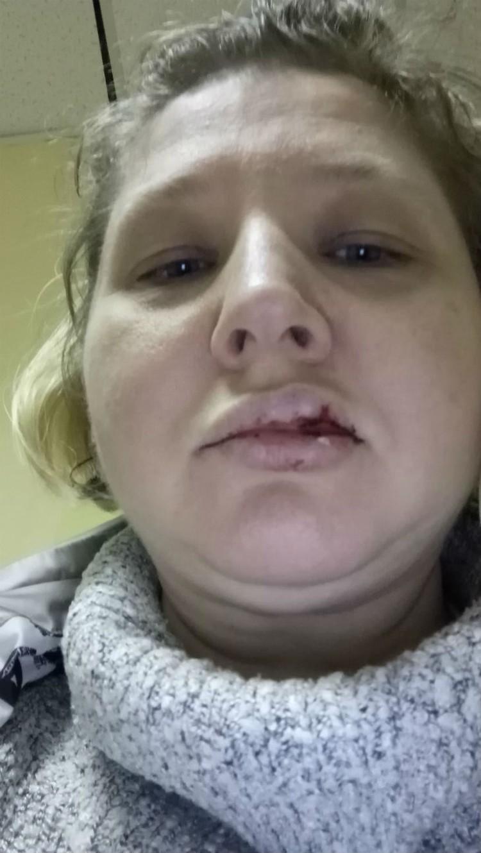 В драке Викторию Скрипаль сильно ударили по лицу. Фото предоставлено Викторией Скрипаль.