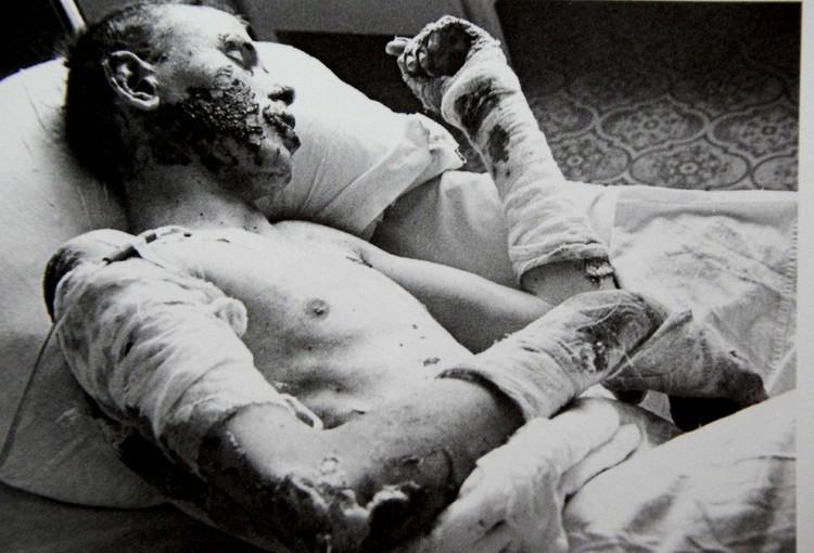 В ожоговом центре не было свободных коек. Фото: архив Юрия Вишни.