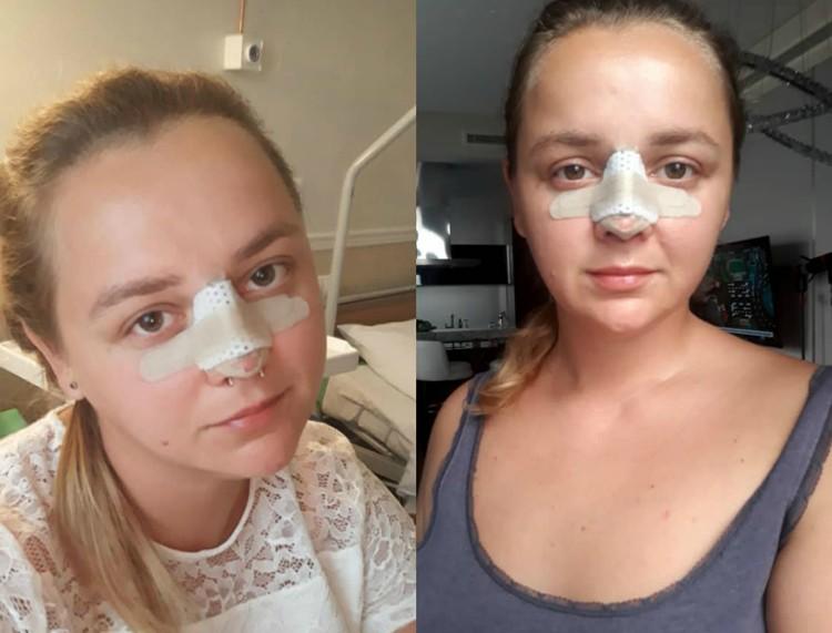 На фото слева Кристина через 4 часа после операции, справа - на третий день после хирургического вмешательства.
