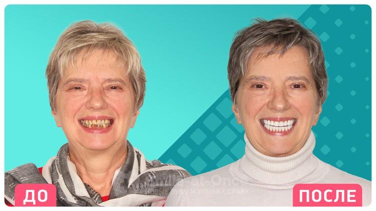 Так меняются пациенты после проведения имплантации зубов в клинике Smile-at-Once.
