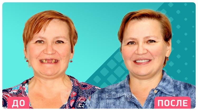 Результат комплексной имплантации на фоне запущенного пародонтита – новая улыбка, новые зубы и отсутствие воспаления.