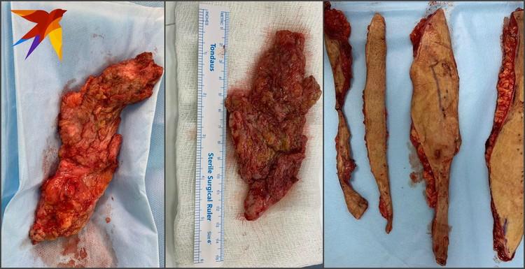 В течение 10 часов хирург удалял все лишнее, чтобы избавить пациентку от боли.