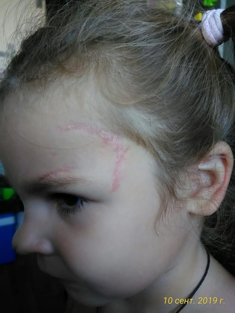У Кристины остались на лице шрамы. Фото: семейный архив