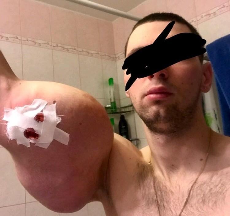 Через несколько месяцев после операции, Кирилл начал жаловаться на боль, повышение температуры и даже обмороки.