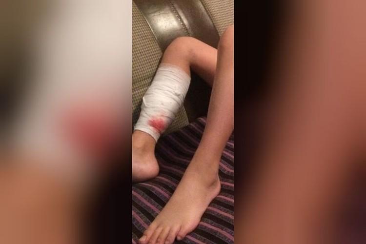 Прокушенная нога у Даниила все еще болит и кровоточит, ходить он пока не может. Фото: семейный архив.