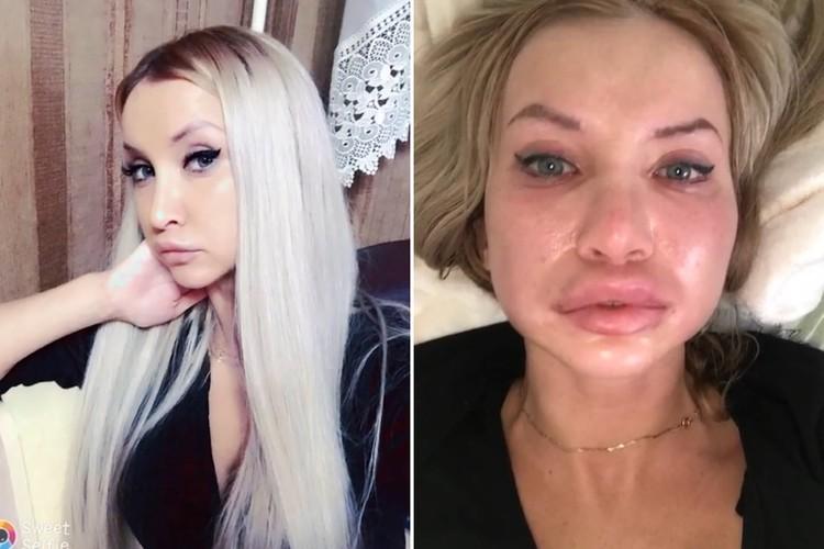Елизавета Ткаченко до и после укола