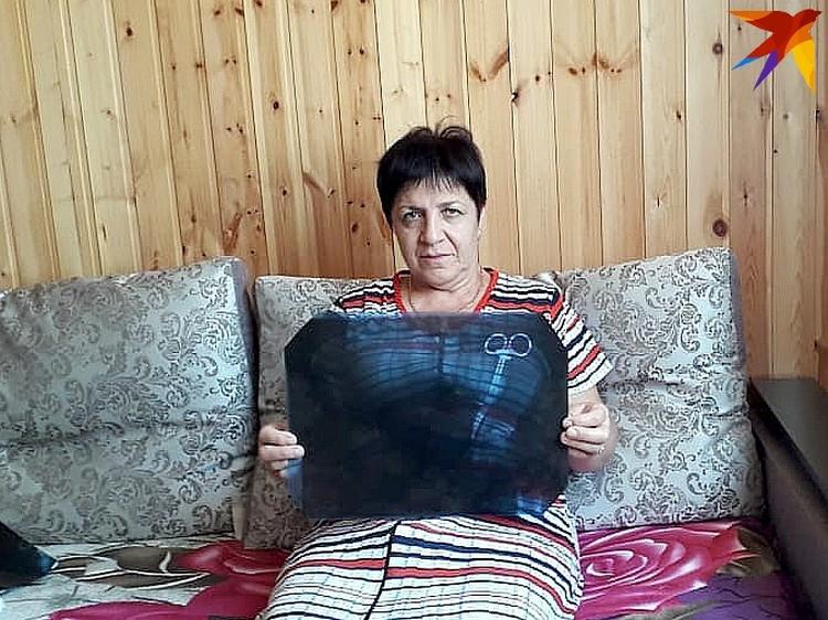Евета держит снимок, который привел врачей в ужас