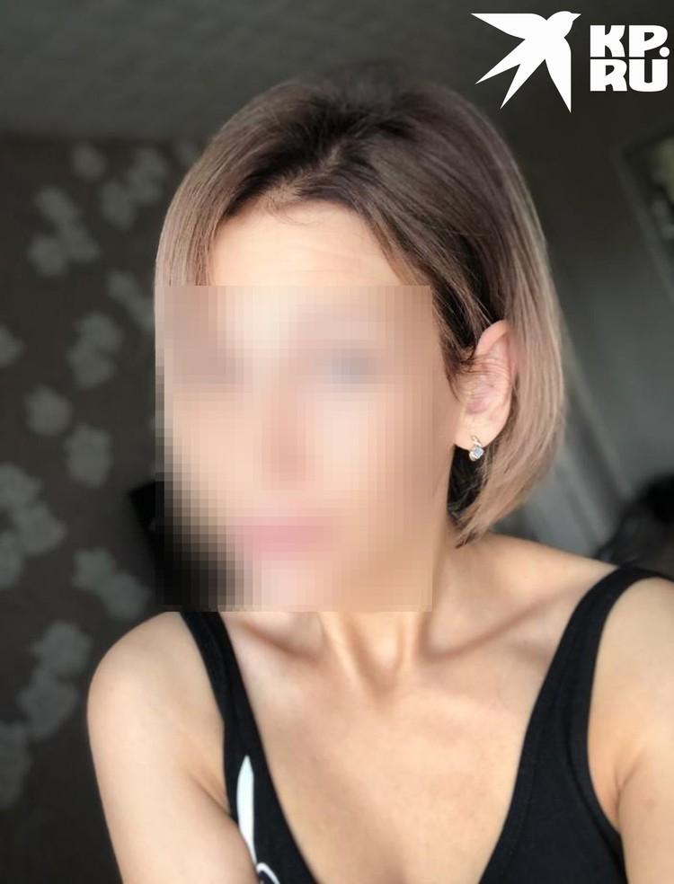 После операции девушка прячет ухо за волосами. Фото: личный архив.