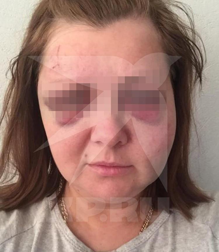 Подруга супруги Дениса, Евгения, также подверглась насилию.