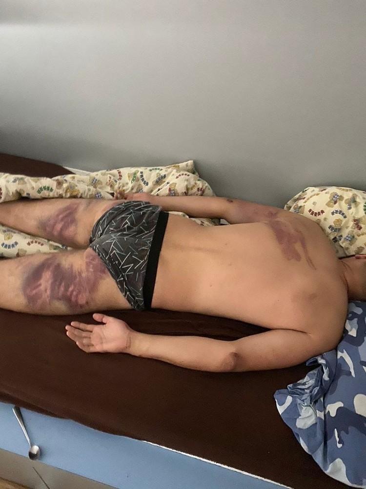 Сейчас Дмитрий находится в больнице с различными травмами и гематомами
