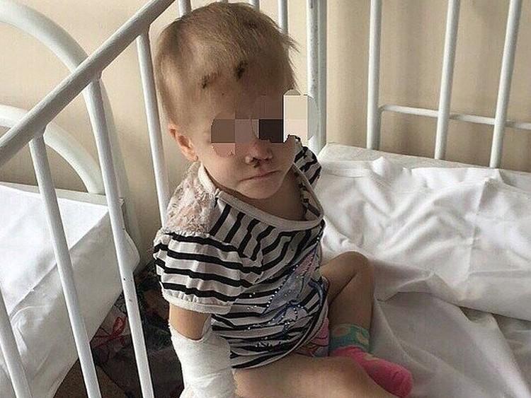 В 2018 году малышка из Александровки попала в больницу в крайнем истощении, при появлении бабушки она прикрывала голову руками. На странное поведение ребенка обратили внимание волонтеры - с этого и началось расследование. Фото: предоставлено волонтерами