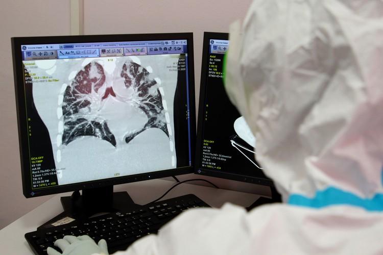 Рентгеновский снимок легких, полученный при проведении компьютерной томографии.
