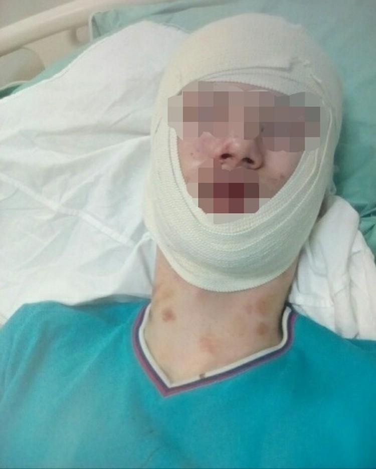 Сейчас Михаил находится в больнице с двойным переломом челюсти. Врачи диагностировали у воркутинца множественные кровоподтёки и ушибы мягких тканей. Фото: личная страница в вк.