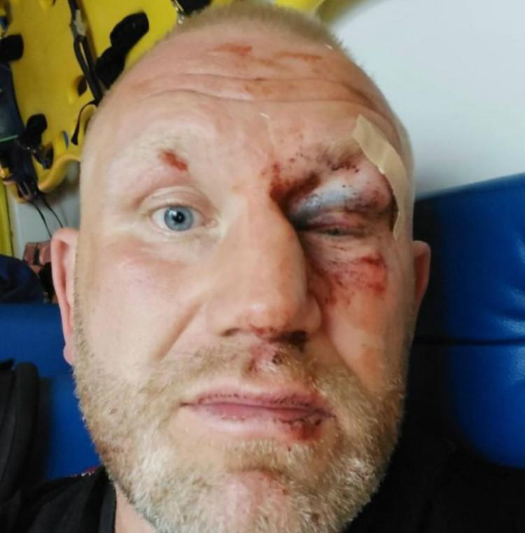 Харитонова отвезли в больницу c заплывшим глазом и свернутым носом.
